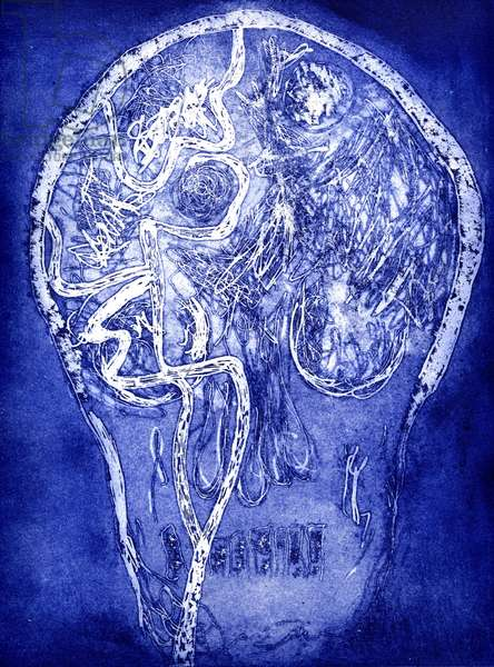 Brainscape 5, 2006, (etching and aquatint)