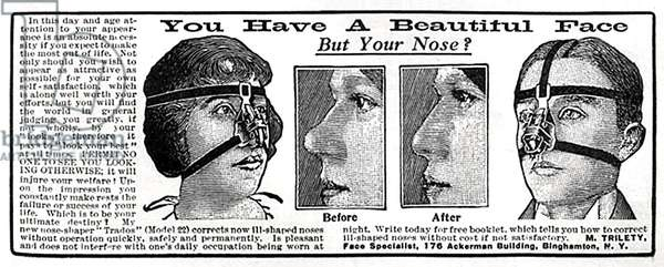 Advertisement for M. Trilety's 'Trados' (Model 22) Nose-Shaper, 1900s (litho)