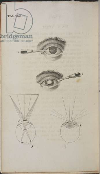 Diagrams on the subject of the human eye.