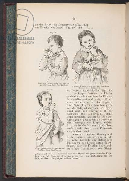 Sucking on the fingers, lips, etc. in children, illustration from 'Jahrbuch fuer Kinderheilkunds' by S. Lindner, p.74, 1879 (litho)