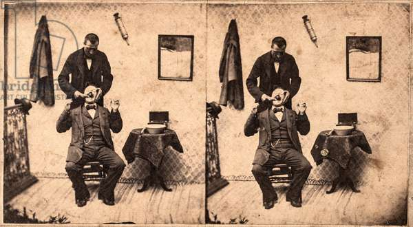 Dentist Extracting Teeth, Mulhouse, France, c.1885 (stereoview)