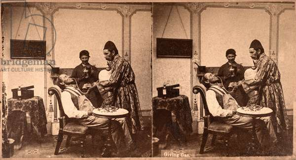 Dentist, Giving a Patient Gas, Anesthesia, c.1875 (stereoview)