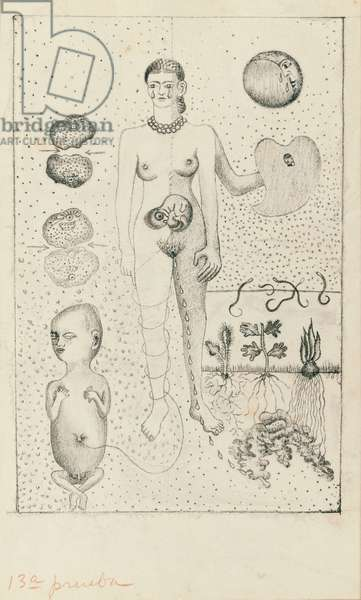 Frida and the Miscarriage, 1932 (litho on paper)