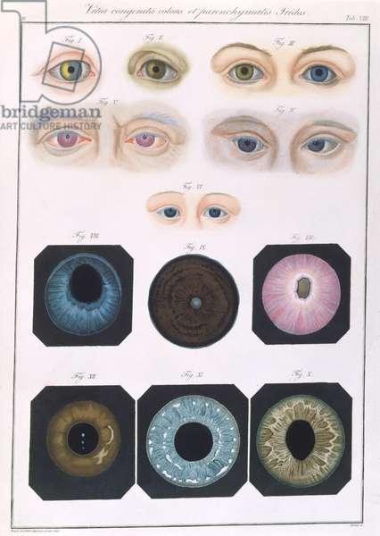 Description of congenital eye anomalies, from 'Klinische Darstellungen der Krankheiten und Blidungsfehler des Mesnschlichen Auges', by Friedrich August von Ammon (1799-1861) 1838 (coloured engraving)
