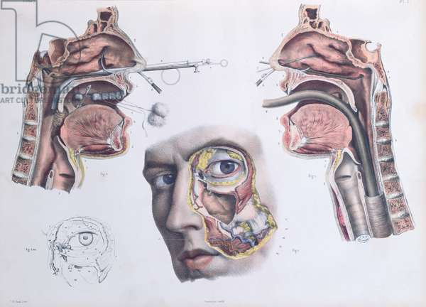 A Nasal Operation, plate from 'Traite Complet de l'Anatomie de l'Homme' by Jean-Baptiste Marc Bourgery (1797-1849) 1866-67 (coloured engraving)