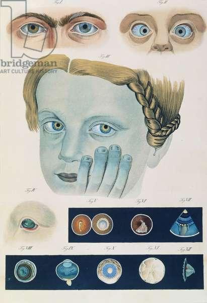 Description of congenital eye anomalies, from 'Klinische Darstellungen der Krankheiten und Blidungsfehler des Menschlichen Auges', by Friedrich August von Ammon (1799-1861) 1838 (coloured engraving)