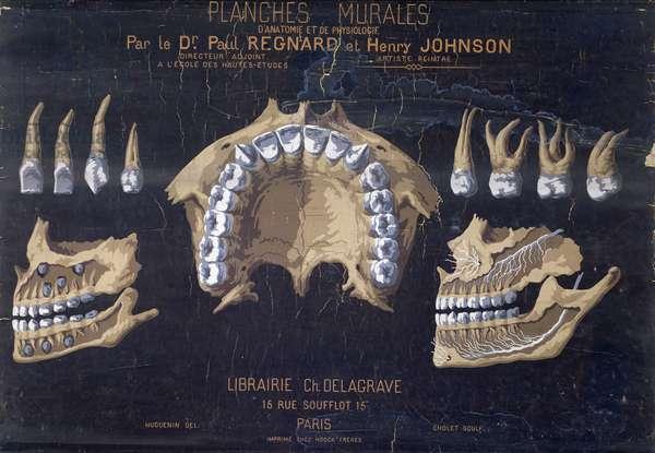 Anatomical wallchart of the teeth (colour litho)