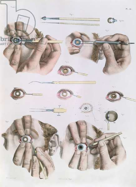 Operation on a eye, plate from 'Traite Complet de l'Anatomie de l'Homme' by Jean-Baptiste Marc Bourgery (1797-1849) 1866-67 (coloured engraving)