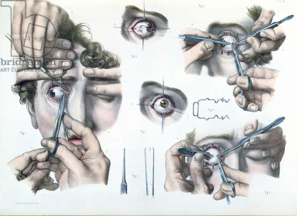 Operation on a strabismus, plate from 'Traite Complet de l'Anatomie de l'Homme' by Jean-Baptiste Marc Bourgery (1797-1849) 1866-67 (coloured engraving)