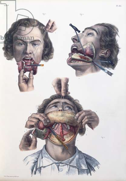 Operation on the lower jaw, plate from 'Traite Complet de l'Anatomie de l'Homme' by Jean-Baptiste Marc Bourgery (1797-1849) 1866-67 (coloured engraving)