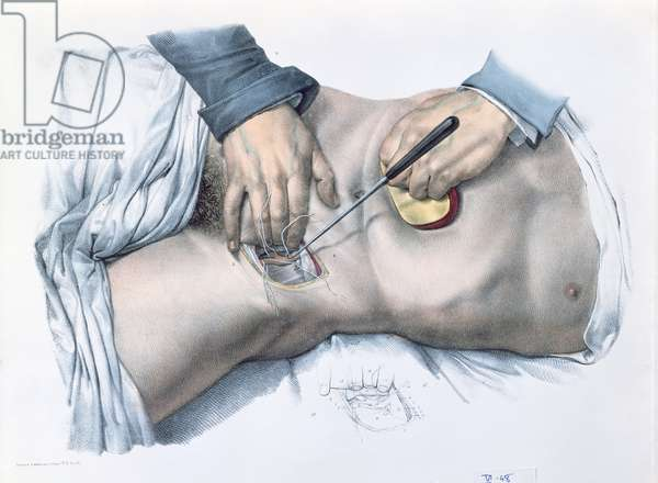 Tying up an artery, plate from 'Traite Complet de l'Anatomie de l'Homme' by Jean-Baptiste Marc Bourgery (1797-1849) 1866-67 (coloured engraving)