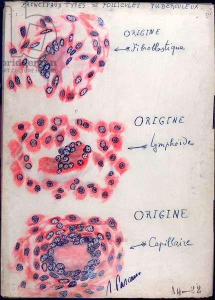 Principle tuberculosis follicles (pen & ink on paper)