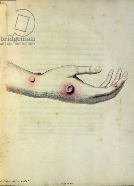 Cowpox pustule on the arm of Sarah Nelmes, from 'An Inquiry into the Causes and Effects of the Variolae Vaccinae' by Edward Jenner (1749-1823) engraved by Pearce, c.1800 (coloured engraving)