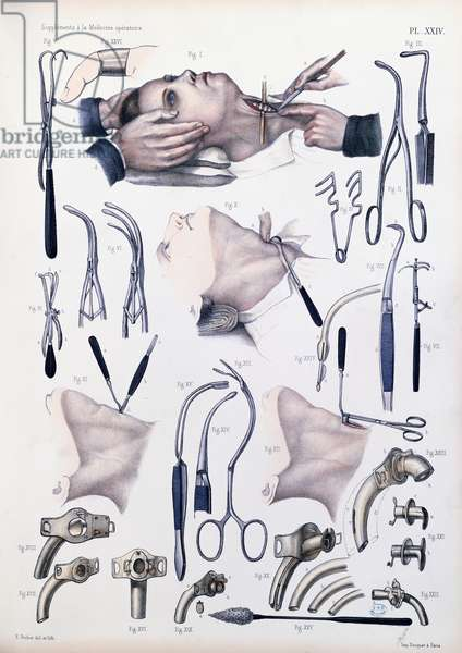 Tracheotomy operation, plate from 'Traite Complet de l'Anatomie de l'Homme' by Jean-Baptiste Marc Bourgery (1797-1849) 1866-67 (coloured engraving)