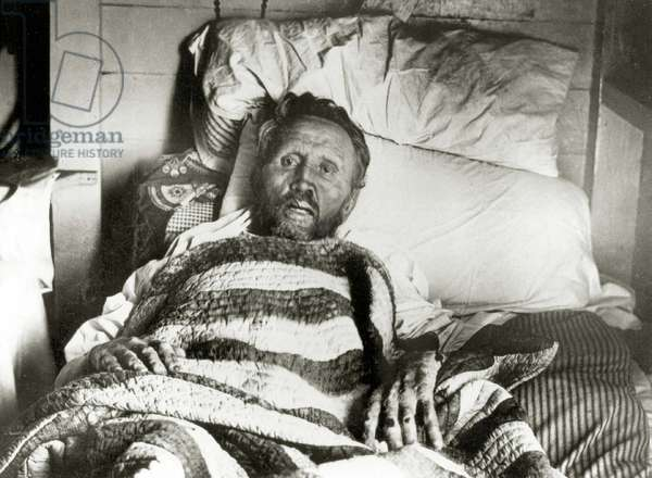 Father Damien on his deathbed dying of Leprosy, Malokai, Hawaii. 1889 (photo)