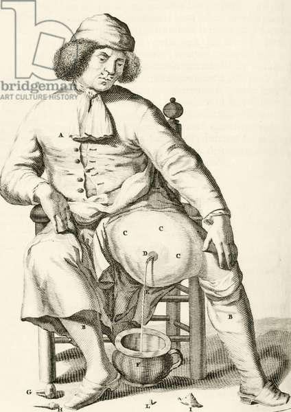 "Draining fluid from an abscess, from ""Exercitationes Practicae circa Medendi Methodum"" by Frederik Dekkers, 1694 (engraving)"