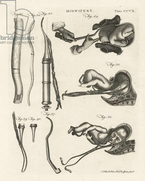 Midwifery, illustration from 'Encyclopedia Britannica', published in Edinburgh, 1798 (copperplate engraving)