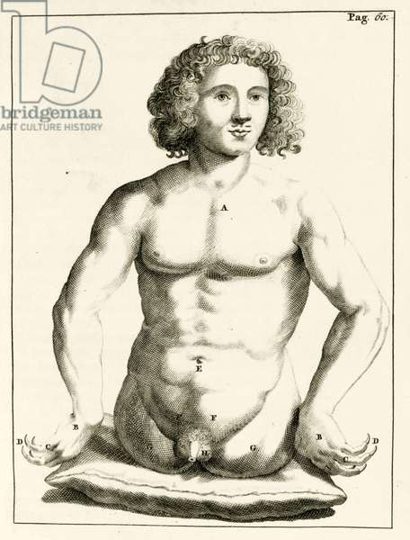 "Example of congenital birth defects, from ""Exercitationes Practicae circa Medendi Methodum"" by Frederik Dekkers, 1694 (engraving)"