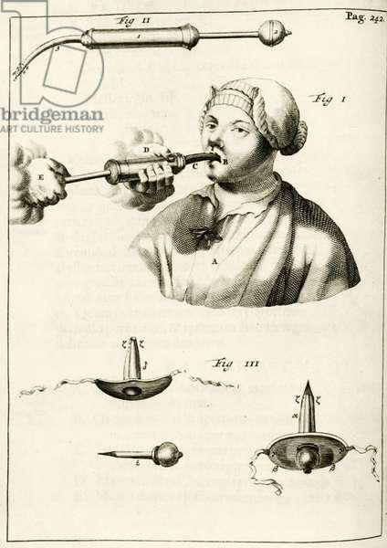 "Using a syringe to deliver a purge, from ""Exercitationes Practicae circa Medendi Methodum"" by Frederik Dekkers, 1694 (engraving)"