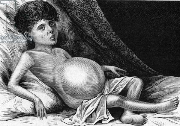 Representation of a child with tile disease, with belly deformed (engraving)