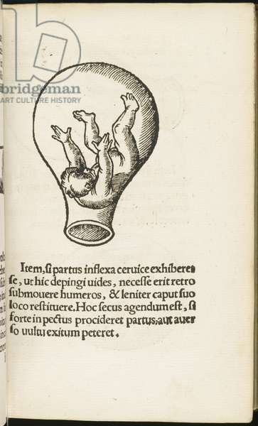 Page from 'De Partu Hominis ' by Eucharius Roesslin, 1538 (woodcut)