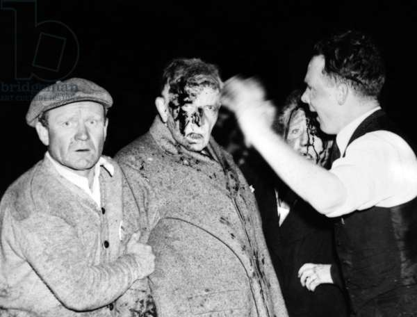 Injured in the Hindenburg Crash. Survivors are dazed and bloodied by the explosion, fire and crash, a man and women passenger are given first aid before going to the hospital. There were among the 23 passengers who survived the wreck. 13 passengers were killed. May 6, 1937