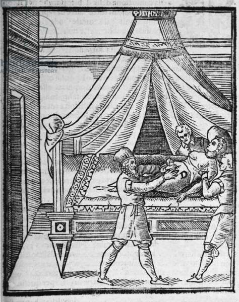 A woman lying on a bed is being restrained by two male assistants while the surgeon extracts the infant during a Cesarean section. The operation was fatal to most women, with the first recorded maternal survival of 25 days after the operation occurring in 1605. Italian print from 1601