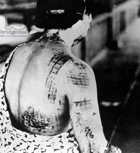 Injured female survivor's of Nagasaki, Japan, atomic bombing. Her skin is burned in a pattern corresponding to the dark portions of a kimono worn at the time of the explosion. Sept. 1945