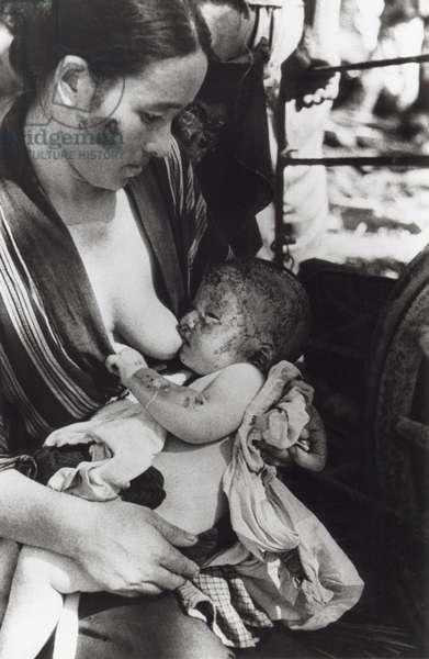 Mother nursing her baby after surviving of the Nagasaki atomic bomb. Japan, August 10, 1945. Photo by Yosuke Yamahata. World War 2