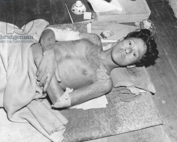 Japanese male victim of the atom bomb explosion over Nagasaki, Japan. Sept.-Dec. 1945