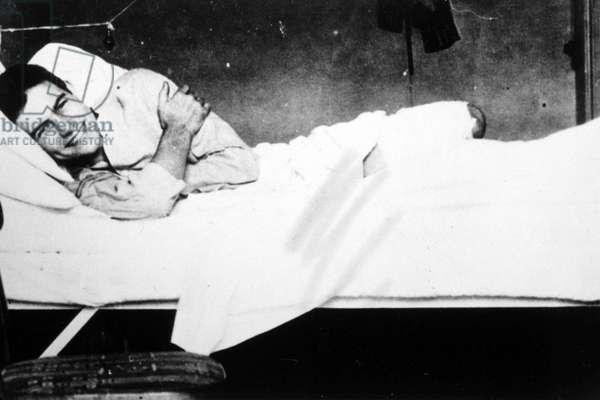 ERNEST HEMINGWAY in the Red Cross Hospital in Milan, 1918.