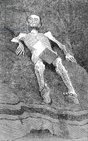 CIVIL WAR: PRISONER Emaciated prisoner during the American Civil War. Engraving, 19th century.