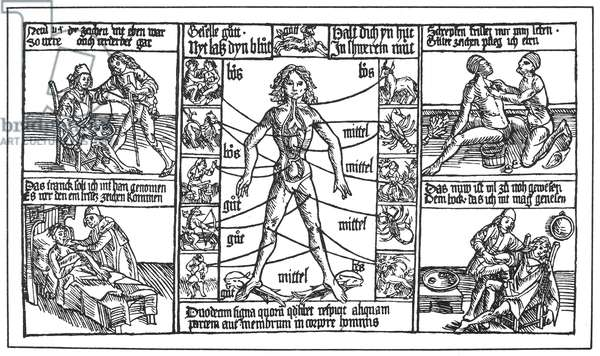 BLOODLETTING, 1480 German astrological bloodletting chart used by barber surgeons as fair posters, 1480.