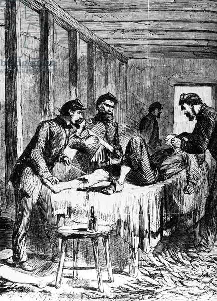 CIVIL WAR: AMPUTATION A Civil War surgeon preparing to amputate a soldier's leg at a field hospital. Contemporary American wood engraving.