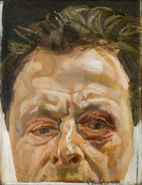 Self Portrait with a Black Eye, 1978 (oil on canvas)