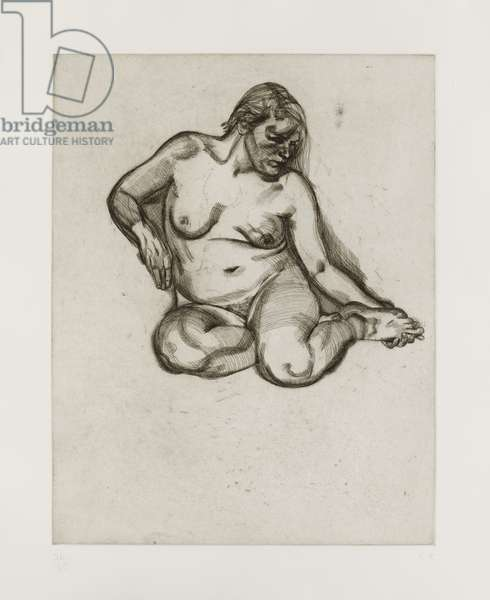 Girl Holding Her Foot, 1985 (etching)
