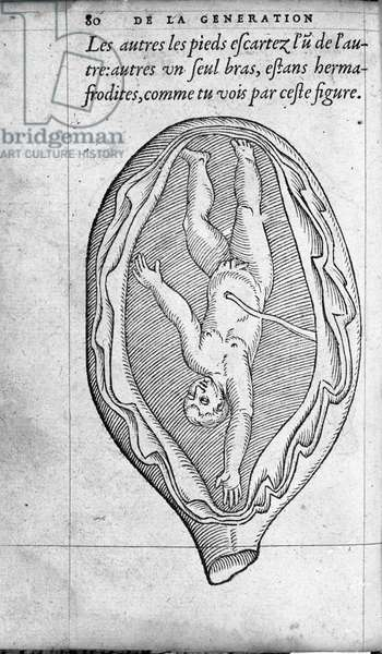 """The position of the fetus in the uterus during pregnancy. Engraving from """""""" De la generation des enfants"""""""" by French doctor and surgeon Ambroise Pare (1509-1590) 16th century"""
