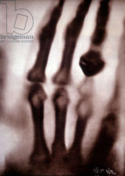 Roentgen rays (Rontgen) or X-rays First photograph: the hand of Roentgen's wife. 22/12/1895.