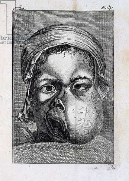Deformed Face, from a book about mouth surgery by A.L.B.B Jourdain, 1784 (engraving)