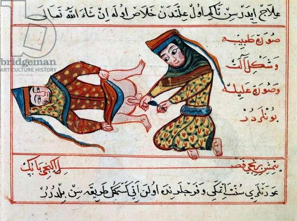 Medicine: operation of a hermaphoditis. Miniature from a Treat of Turkish Medicine by Sharaf al-din, 1466 Paris, B.N.