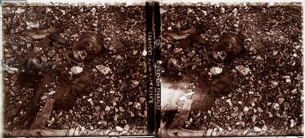 Unearthed corpses (b/w photo)