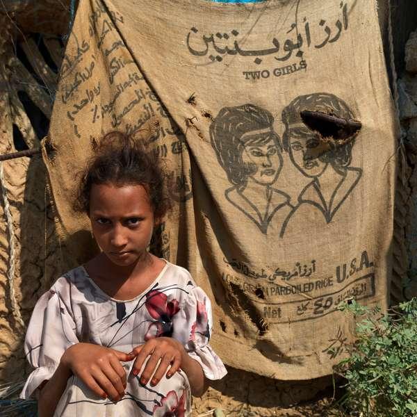 Yemeni Refugee in Abo Agros Village, Tihama Coast, Saudi Arabia (photo)