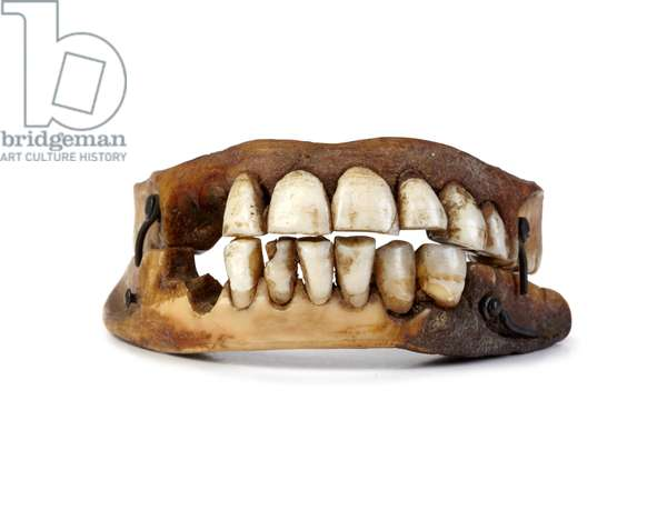 Waterloo Teeth (photo)
