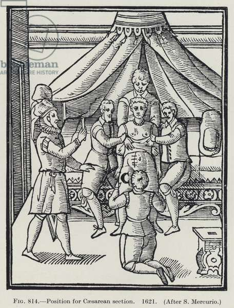 Position for Caesarean section, 1621 (litho)