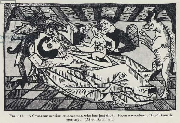 A Caesarean section on a woman who has just died (litho)