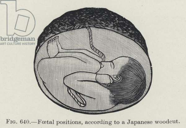 Foetal positions (litho)