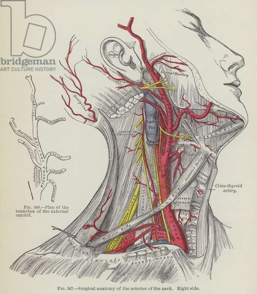 Surgical anatomy of the arteries of the neck, right side (engraving)