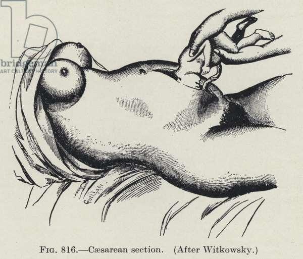 Caesarean section (litho)