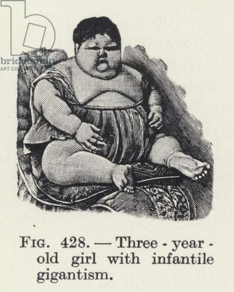 Three-year-old girl with infantile gigantism (litho)