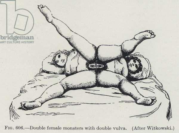 Double female monsters with double vulva (litho)